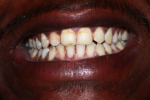 young boy showing infected teeth from chewing tobacco