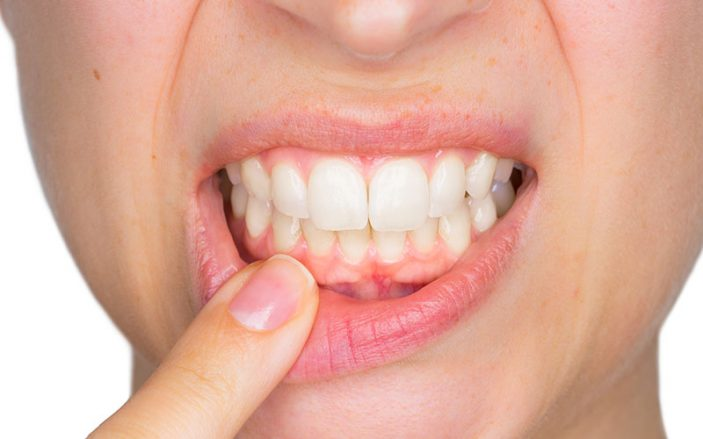 woman pointing to her gums in pain