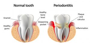 normal tooth compared to periodontitis